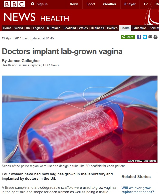 Doctor's Implant Lab-Grown Vagina